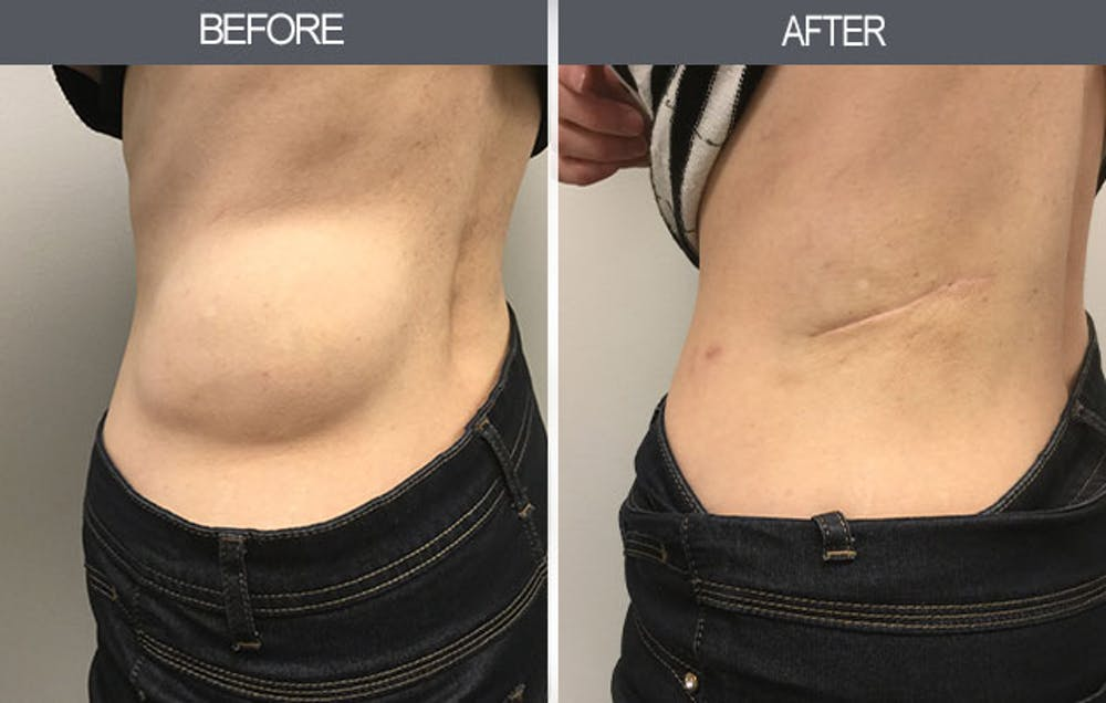 Lipoma Removal Gallery - Patient 4448468 - Image 2