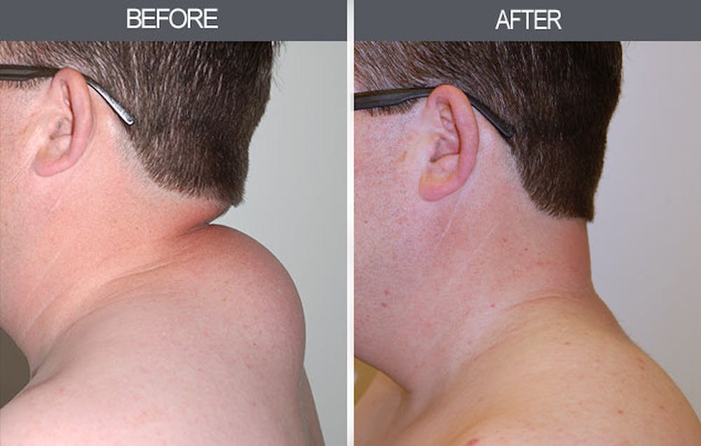 Lipoma Removal Gallery - Patient 4448470 - Image 2
