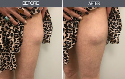 Lipoma Removal Gallery - Patient 4448473 - Image 2