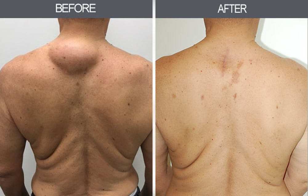 Lipoma Removal Gallery - Patient 4448474 - Image 1