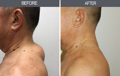 Lipoma Removal Gallery - Patient 4448474 - Image 2