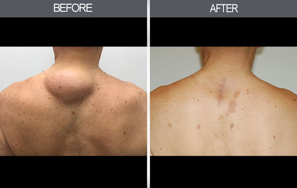 Lipoma Removal Gallery - Patient 4448474 - Image 3
