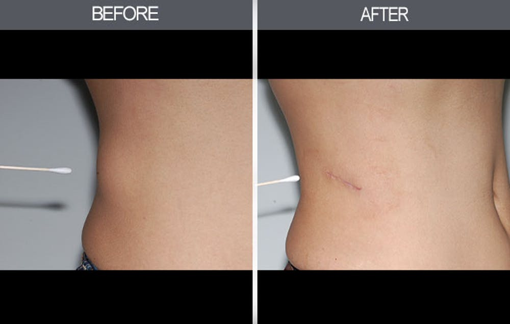Lipoma Removal Gallery - Patient 4448545 - Image 1