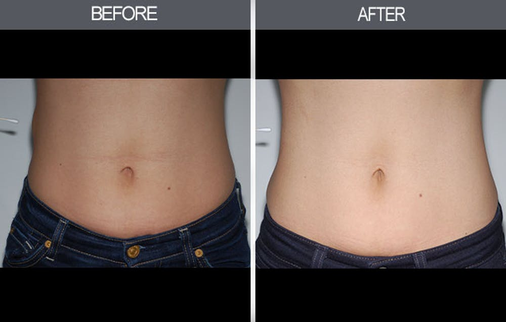 Lipoma Removal Gallery - Patient 4448545 - Image 2