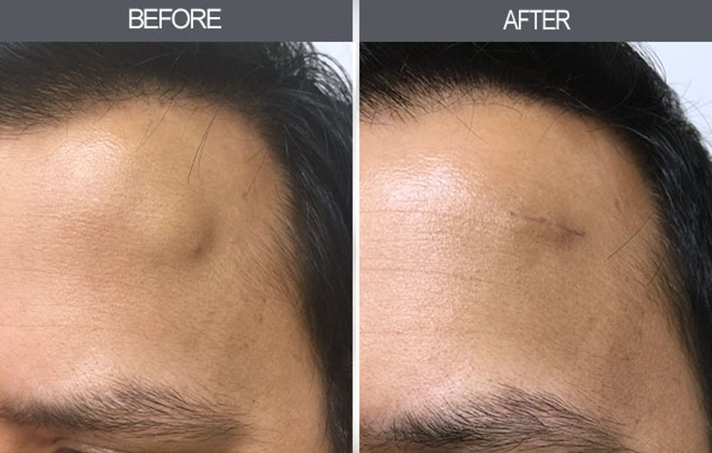 Lipoma Removal Gallery - Patient 4448546 - Image 1