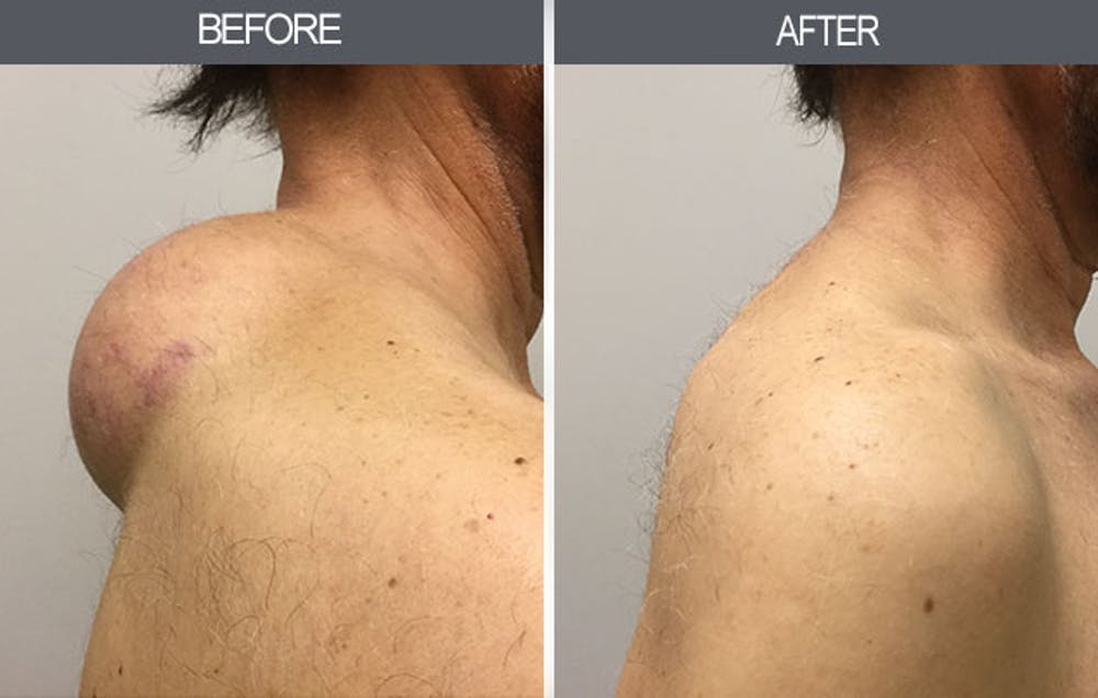 Lipoma Removal Gallery - Patient 4448579 - Image 1