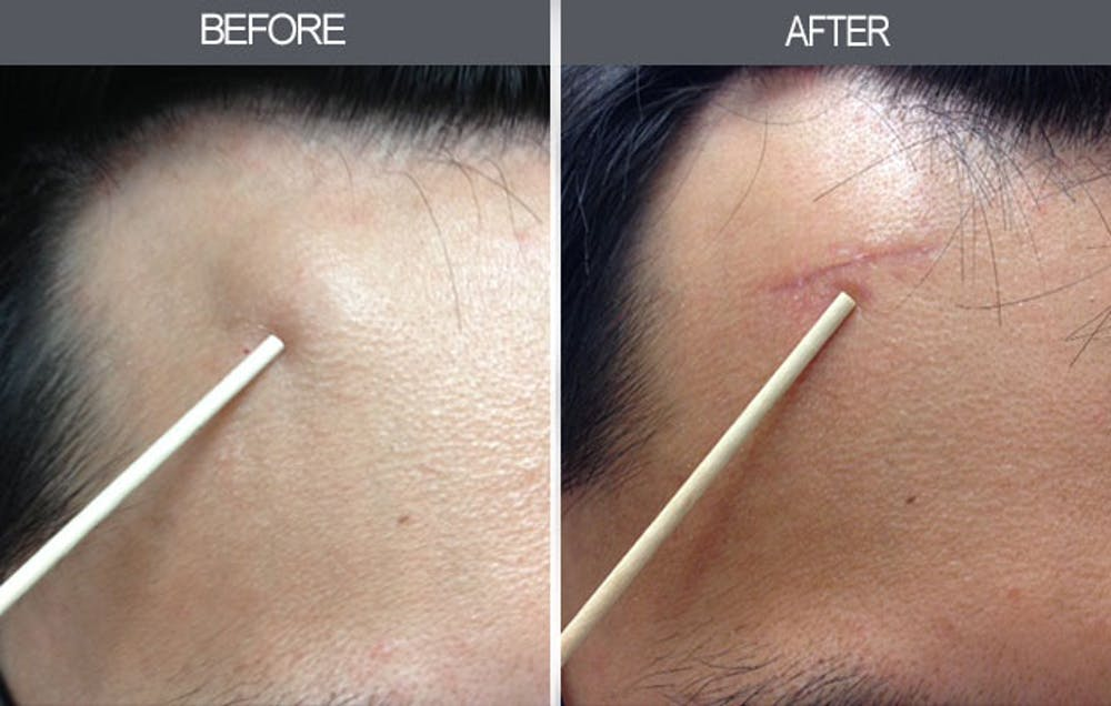 Lipoma Removal Gallery - Patient 4448580 - Image 1
