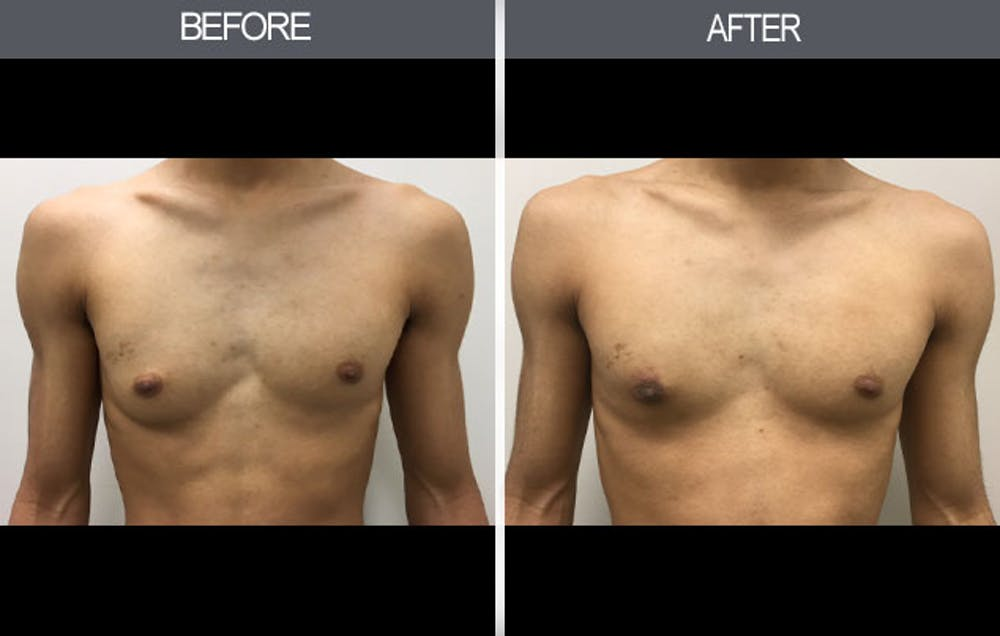 Male Breast Reduction Gallery - Patient 4448716 - Image 1