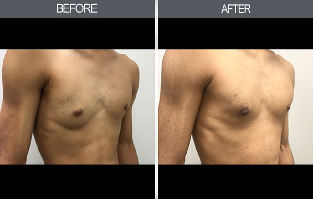 Male Breast Reduction Gallery - Patient 4448716 - Image 2