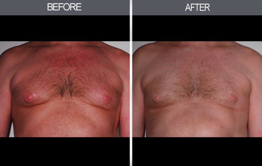 Male Breast Reduction Gallery - Patient 4448717 - Image 1