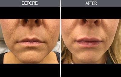 Fillers Gallery - Patient 4448929 - Image 1