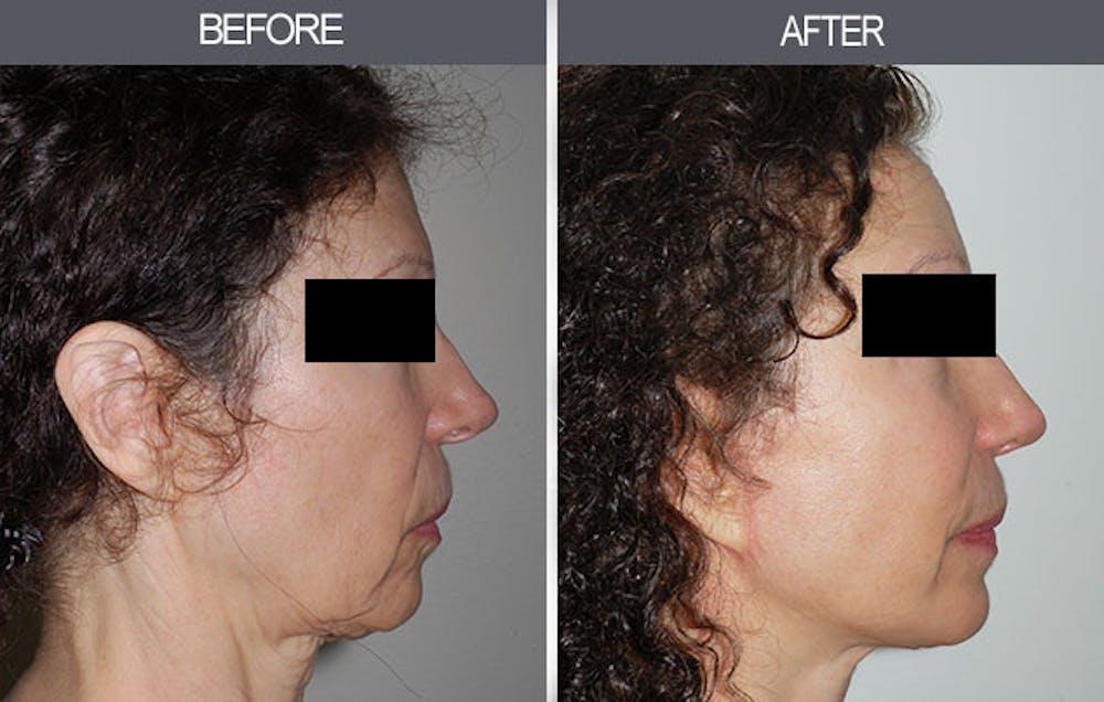 Facelift Gallery - Patient 4449145 - Image 1