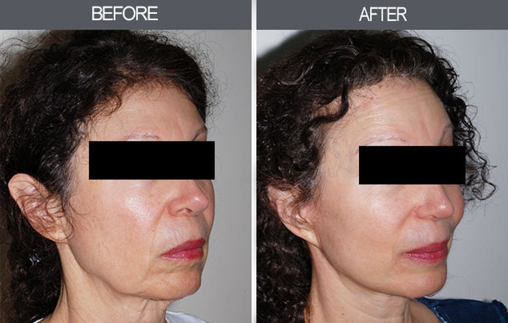 Facelift Gallery - Patient 4449145 - Image 2