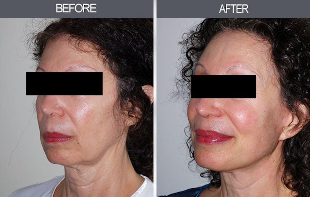 Facelift Gallery - Patient 4449145 - Image 3