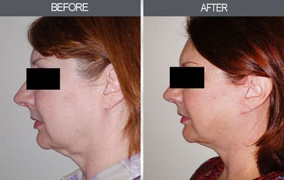 Facelift Gallery - Patient 4449146 - Image 2