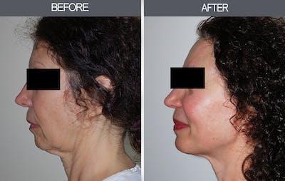 Facelift Gallery - Patient 4449145 - Image 4