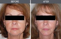 Facelift Gallery - Patient 4449147 - Image 1