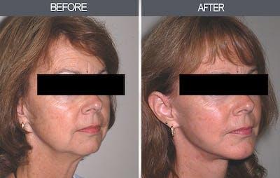 Facelift Gallery - Patient 4449147 - Image 2