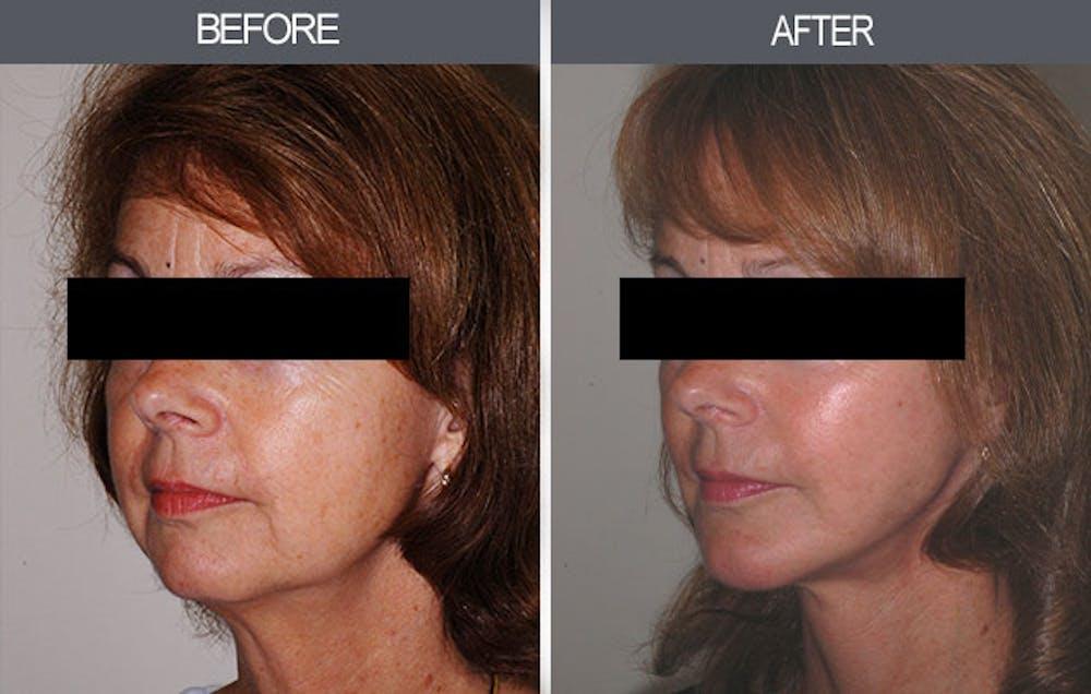 Facelift Gallery - Patient 4449147 - Image 3