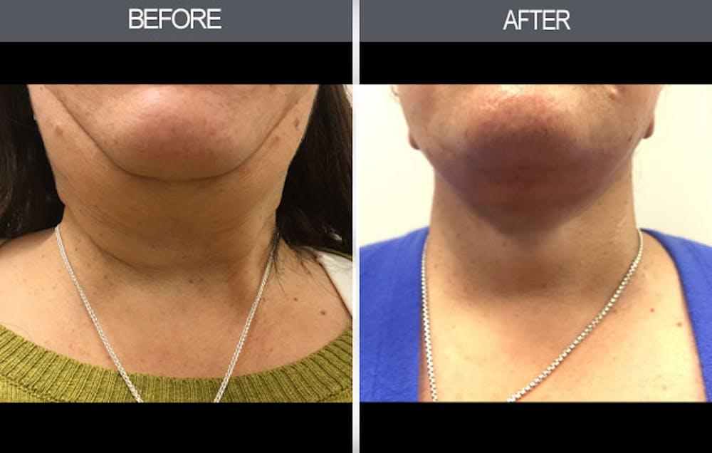 Facelift Gallery - Patient 4449148 - Image 1