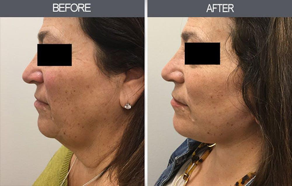 Facelift Gallery - Patient 4449148 - Image 2
