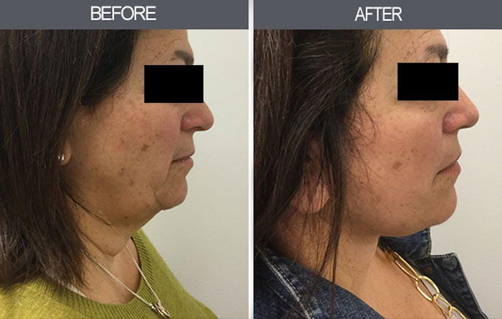 Facelift Gallery - Patient 4449148 - Image 3