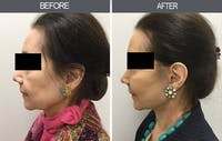 Facelift Gallery - Patient 4449149 - Image 1