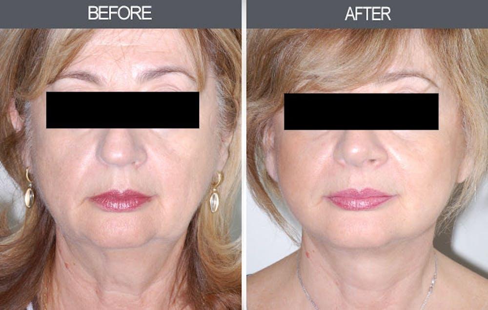 Facelift Gallery - Patient 4449150 - Image 1