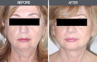 Facelift Gallery - Patient 4449150 - Image 1