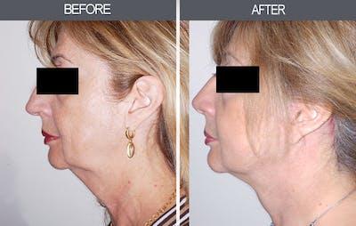 Facelift Gallery - Patient 4449150 - Image 2