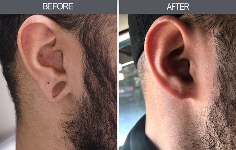 Earlobe Repair Gallery - Patient 4450473 - Image 1