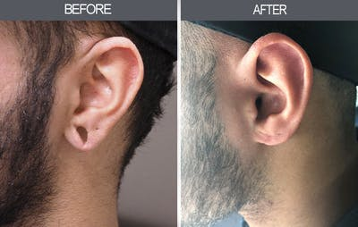 Earlobe Repair Gallery - Patient 4450473 - Image 2