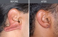Earlobe Repair Gallery - Patient 4450481 - Image 1