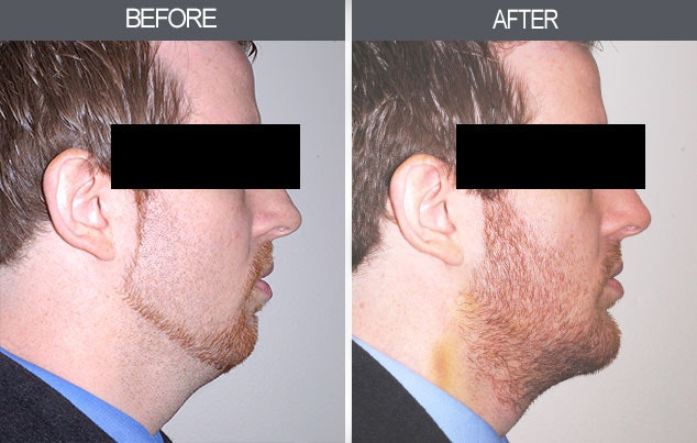 Chin Implants Gallery - Patient 4452263 - Image 1