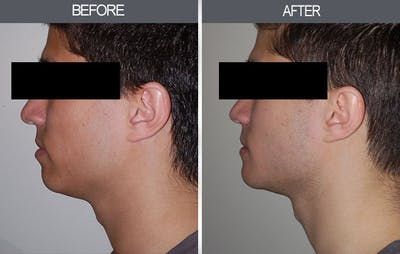 Chin Implants Gallery - Patient 4452264 - Image 1