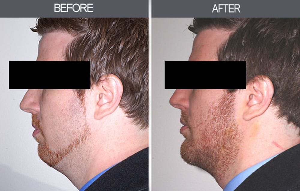Chin Implants Gallery - Patient 4452263 - Image 3