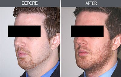 Chin Implants Gallery - Patient 4452263 - Image 4