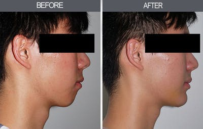 Chin Implants Gallery - Patient 4452265 - Image 1