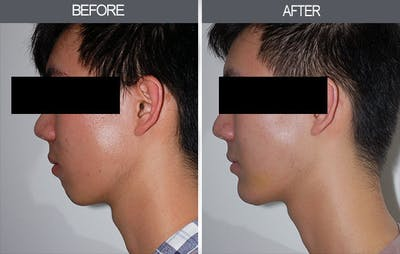 Chin Implants Gallery - Patient 4452265 - Image 2