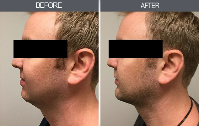 Chin Implants Gallery - Patient 4452266 - Image 1