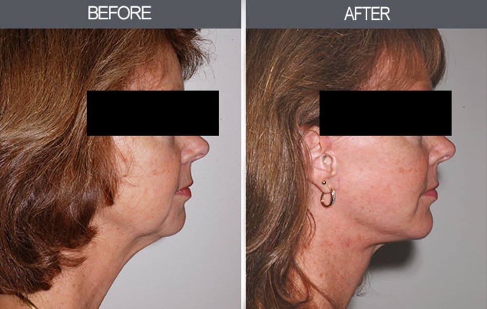 Chin Implants Gallery - Patient 4452267 - Image 1