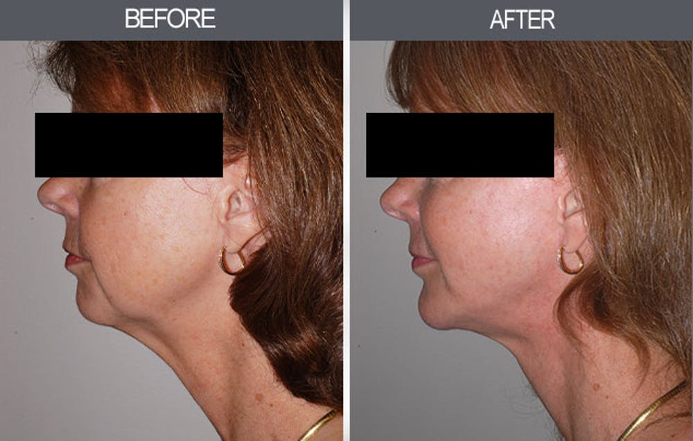 Chin Implants Gallery - Patient 4452267 - Image 2