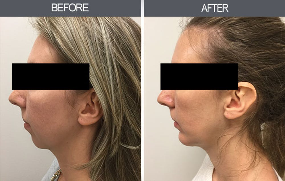 Chin Implants Gallery - Patient 4452268 - Image 2