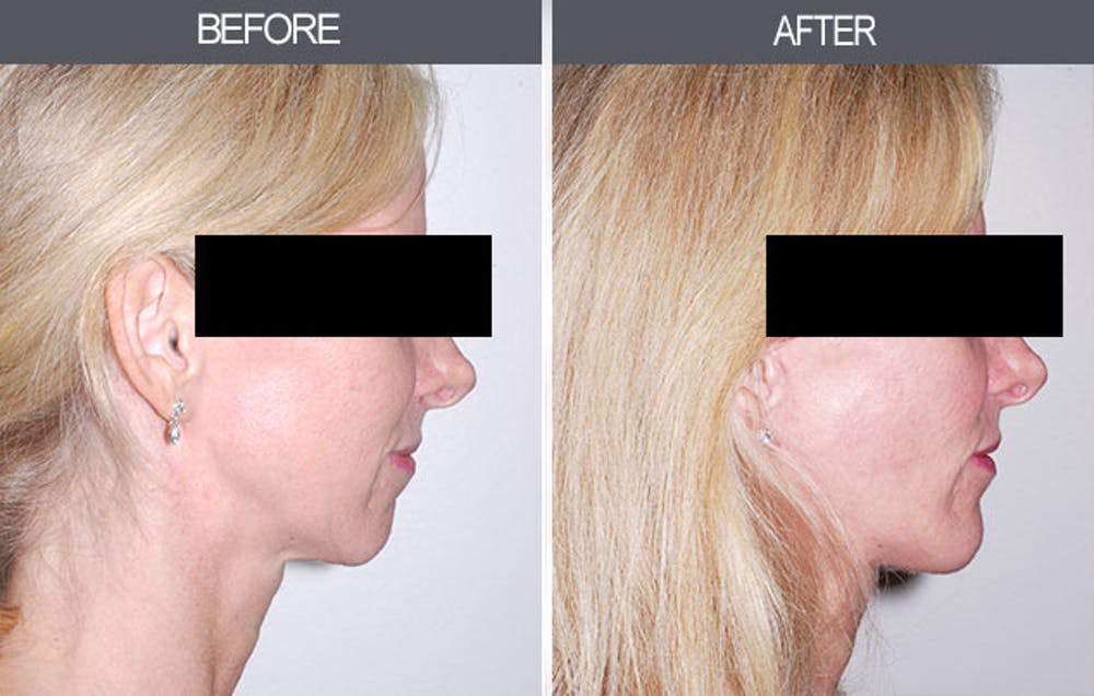 Chin Implants Gallery - Patient 4452269 - Image 2
