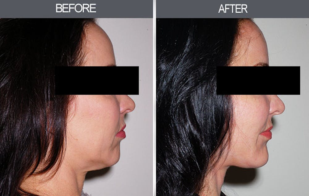 Chin Implants Gallery - Patient 4452270 - Image 1