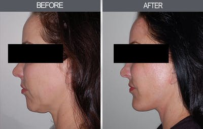 Chin Implants Gallery - Patient 4452270 - Image 2
