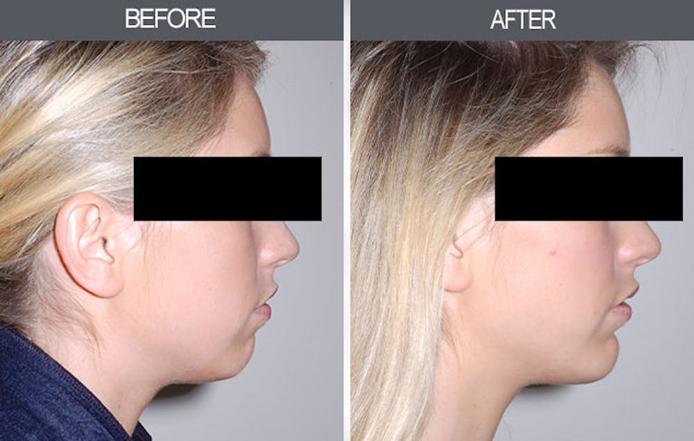 Chin Implants Gallery - Patient 4452271 - Image 1