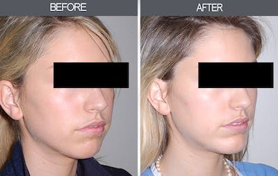 Chin Implants Gallery - Patient 4452271 - Image 2