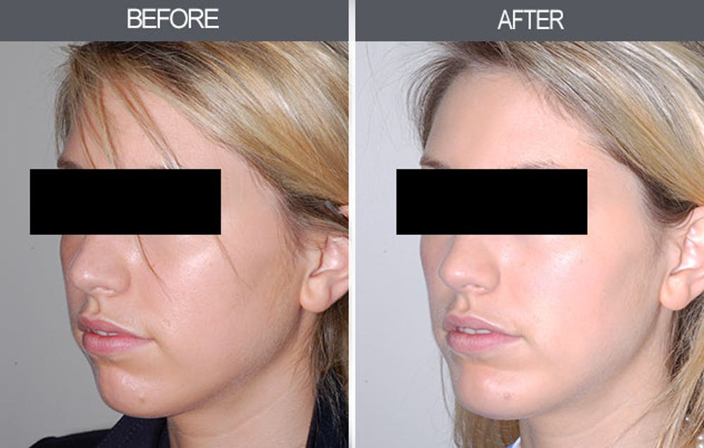 Chin Implants Gallery - Patient 4452271 - Image 3
