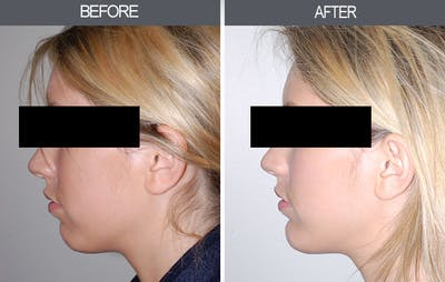 Chin Implants Gallery - Patient 4452271 - Image 4